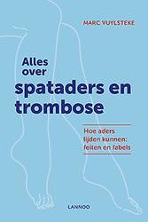 Alles over spataders en...