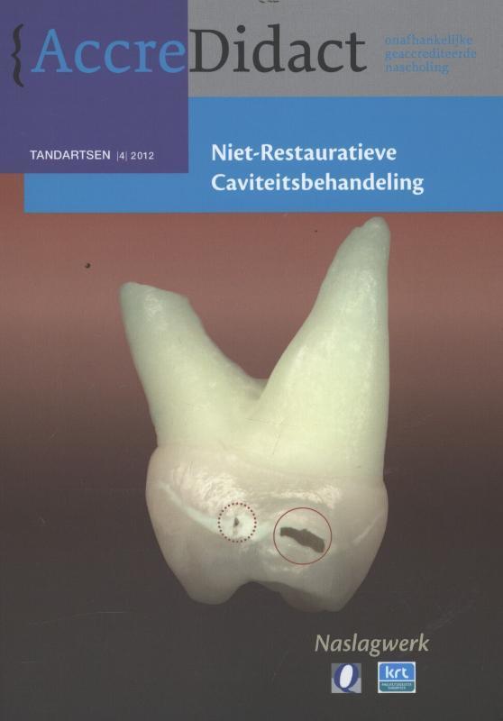 Niet-restauratieve caviteitsbehandeling naslagwerk bij onlinecursus, Gruythuysen, R.J.M., Paperback