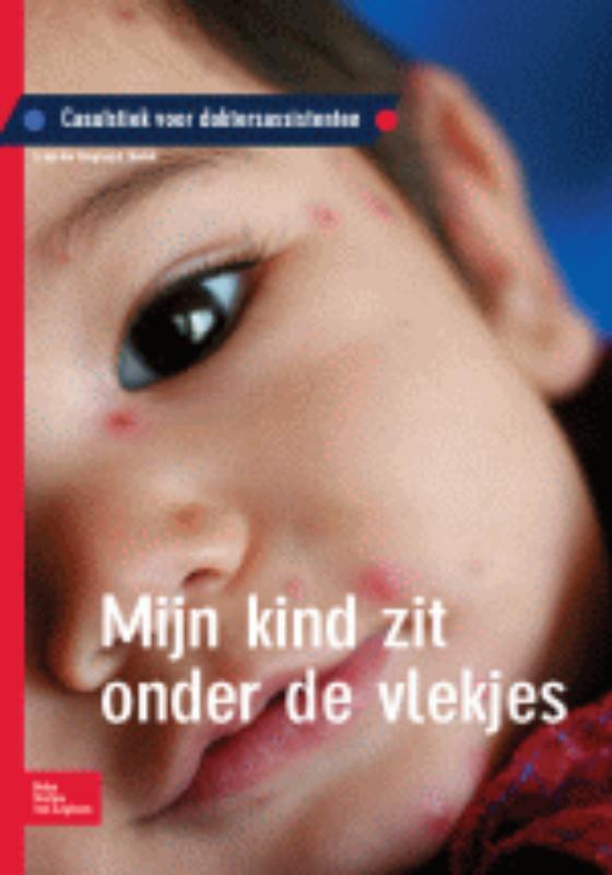 Mijn kind zit onder de vlekjes casuïstiek voor doktersassistenten, Krogt, S. van der, Paperback