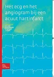 Het ECG en het angiogram bij een acuut hartinfarct W.A. Dijk, Paperback