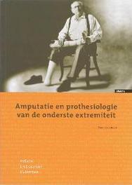 Amputatie en prothesiologie van de onderste extremiteit Paperback